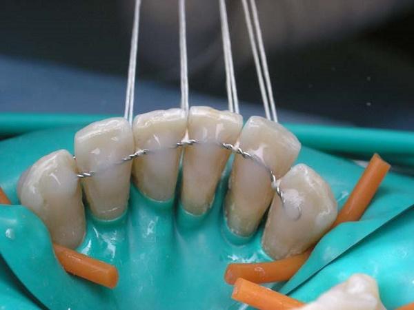 вантовый способ шинирования зубов