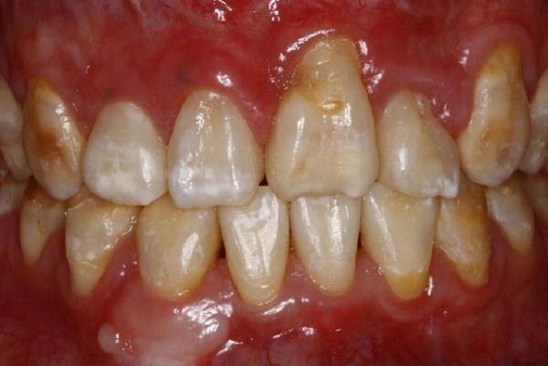 дисплазия эмали зубов, особенности лечения