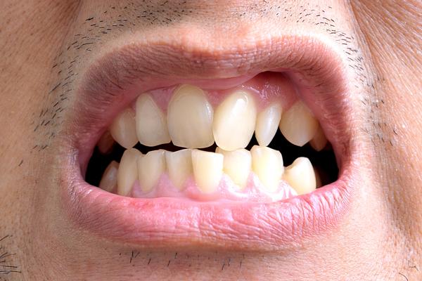 лечение патологии кривых зубов
