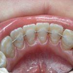 есть ли случаи, когда шинирование подвижных зубов невозможно