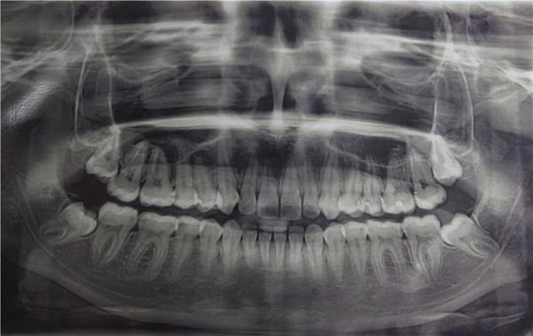 снимок ретенции зубов