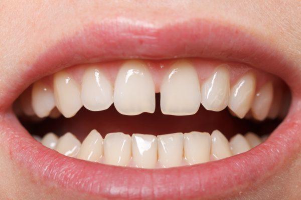 причины щели между зубов