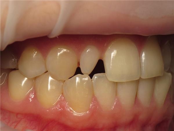 как исправить шиловидные зубы