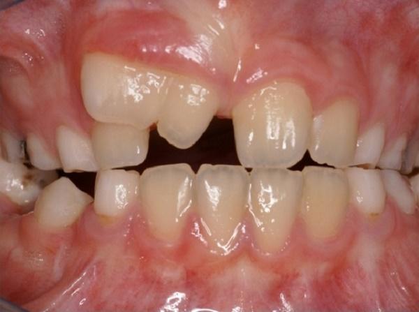 как выглядят слившиеся зубы