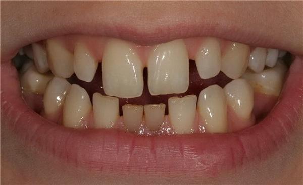 наличие щели мжду зубами