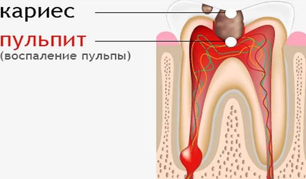 что представляет собой пульпит зуба