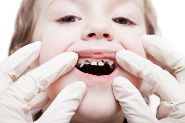 причины гнилых зубов у детей