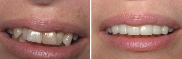 эстетическое наращивание зубов