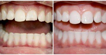 наращивание зубов, методы и цены