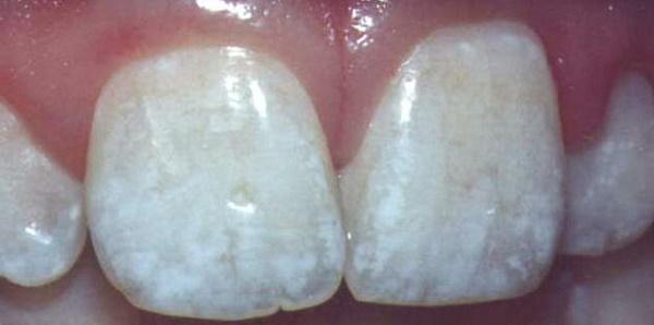 содержание фтора в зубах ребенка