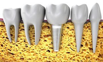 импланты зубов, гарантия на них и срок службы