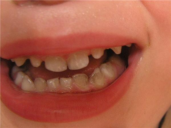 черный налет на зубах, фото