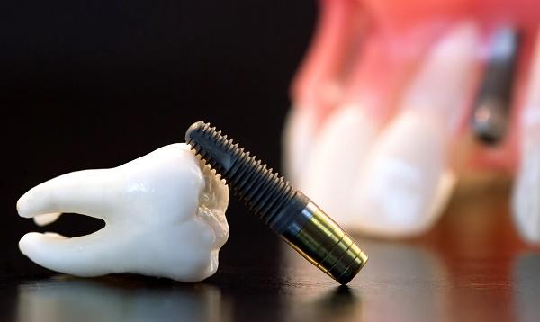 особенности приживаемости зубных имплантов