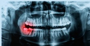 проведение рентгена зуба