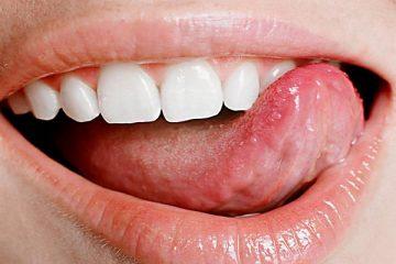 типун на языке: какими способами происходит лечение в домашних условиях