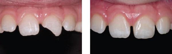 как восстановить зубы композитными материалами