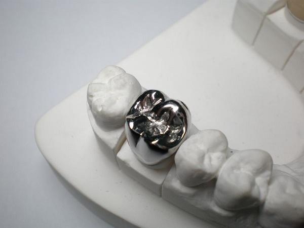 цельнолитые металлические коронки на задние зубы
