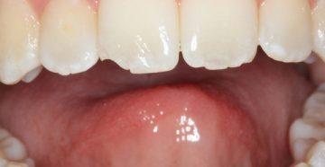 что делать, если откололся кусочек переднего зуба