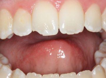 Откалываются зубы, что делать, если откололся кусочек зуба 44