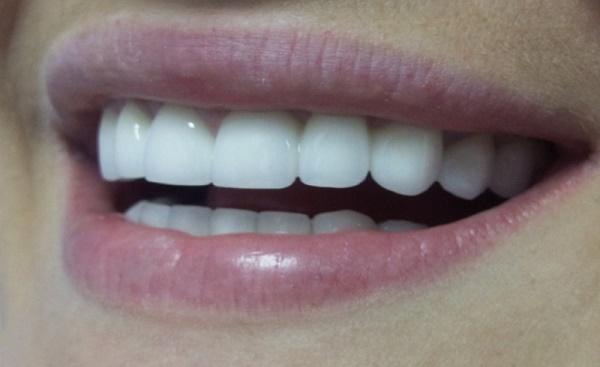 самые лучшие коронки на зубы на сегодняшний день