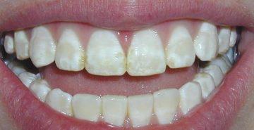 симптомы и способы лечения , фото флюороза зубов