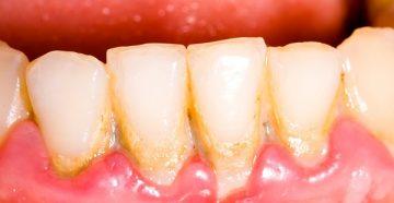 как быстро убрать зубной камень в домашних условиях, фото до и после