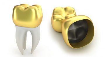 из какого материала лучше поставить коронку на зуб
