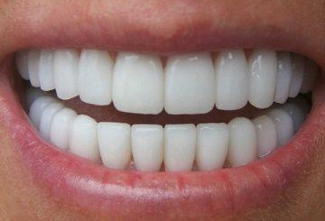 какие зубы лучше вставлять при удалении своих коренных