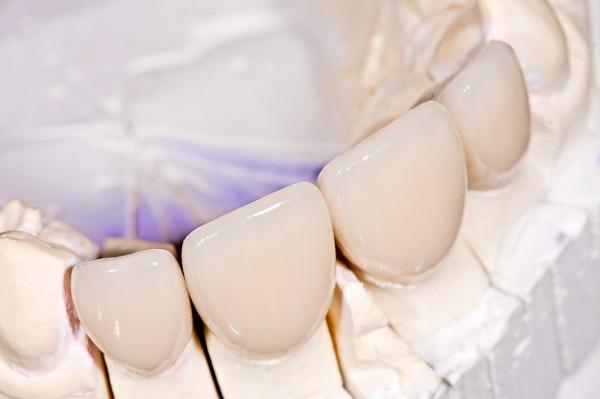под какими коронками лучше сохраняется зуб