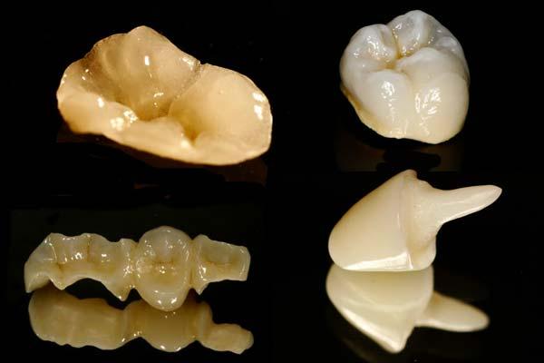 установка керамических зубных вкладок