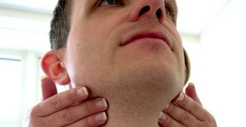 лимфаденит подчелюстной, симптомы, причины и лечение