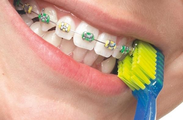 модель зубной щетки 5460 Ortho