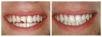 фото до и после проведения процедуры наращивания передних зубов