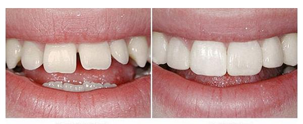 в каких случаях возможно проводить наращивание зубов