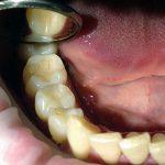 стоимость наращивания зубов