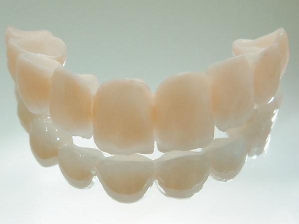 фото пластмассовых коронок на зубы