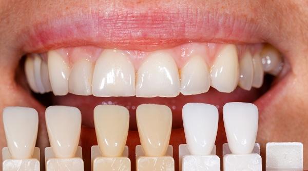 как выбирают цвет зубных виниров, стоимость такого наращивания передних зубов