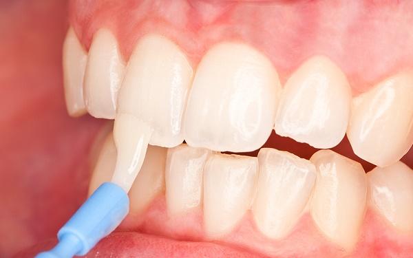 кому нужна реминерализация зубов, сколько стоит процедура
