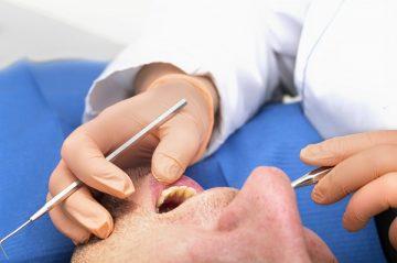 санация полости рта: что это такое и когда ее следует проводить