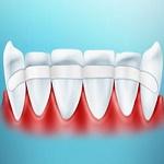проведение шинирование зубов, фото процедуры