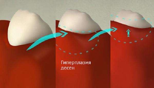 как возникает фиброматоз десен