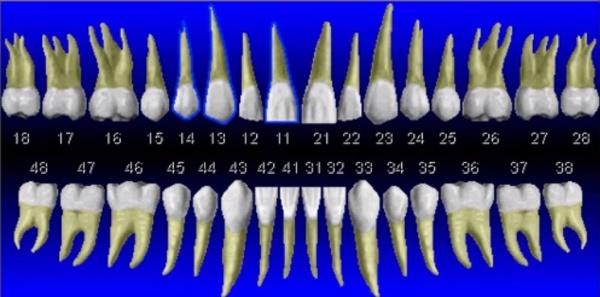 фото пример нумерации зубов по системе Виола