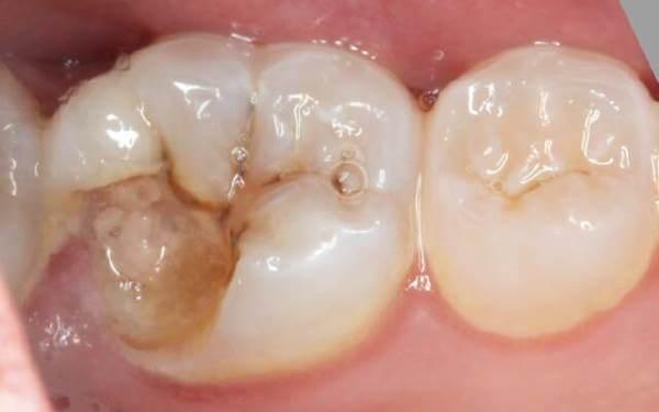 вид скола зуба, оголяющий пульпу