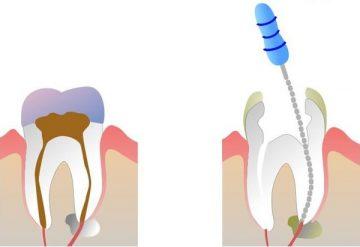 как и с помощью каких лекарств можно убить зубной нерв