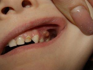 свищ на десне у ребенка 5 лет, фото заболевания