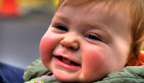 сыпь на щечках при прорезывании зубов
