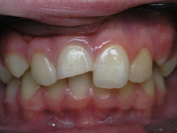 травма переднего верхнего зуба, чувствуется боль при накусывании