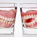 правильный уход за зубными съемными протезами