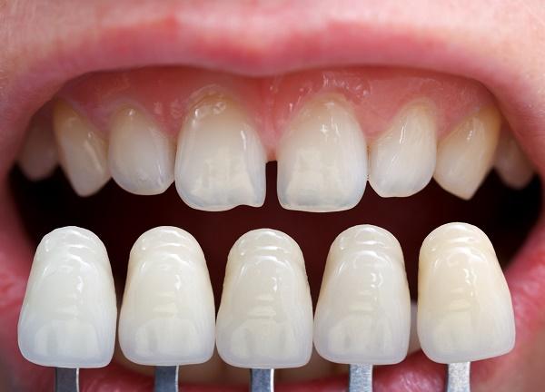 выбор цвета винир для зубов, фото