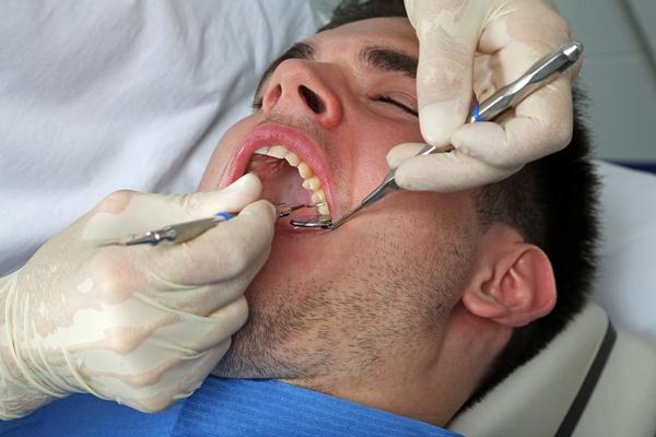 безопасен ли мышьяк в стоматологии, чем его обычно заменяют